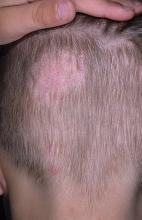 grzybicy skóry głowy