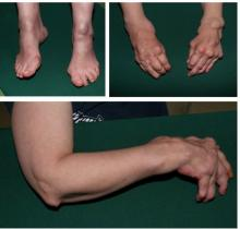 guzki reumatoidalne obrazy