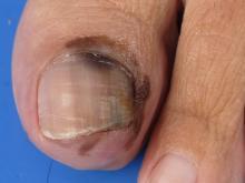 jak wygląda czerniak paznokcia