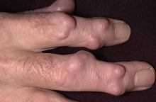 jak wygląda guzek reumatoidalny