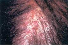 kandydoza skóry głowy
