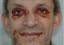krwiak okularowy leczenie
