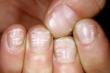 kwitnące paznokcie