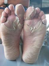 maceracja skóry na stopach
