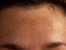 melanodermia na czole