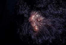 neurofibroma skóra głowy