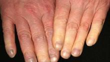 objaw raynauda w obrębie skóry palców