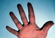 odmrożenia skóry dłoni