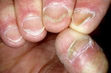 paznokcie łyżeczkowate zdjęcia