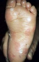 Pęcherzowe oddzielanie się naskórka stopa