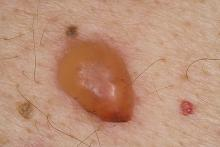 Pemfigoid pęcherzowy