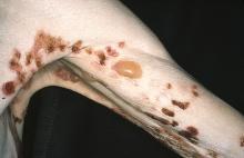 pemfigoid pęcherzowy ręka