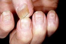 poprzeczne bruzdy na paznokciach foto