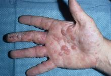 potnicowe zapalenie skóry