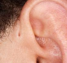 preauricular sinus
