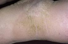 rogowacenie skóry