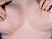 rozstępy na piersiach