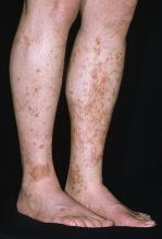 schamberg disease