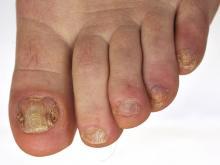 Stwardnienie guzowate paznokieć