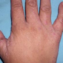 świerzb na dłoniach objawy