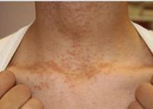 syringoma skin disease