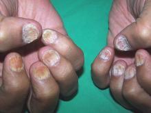 szorstkie paznokcie