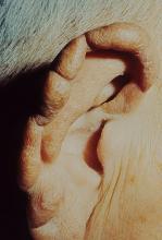 trąd na uchu