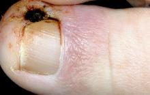 wrzynajace sie paznokcie