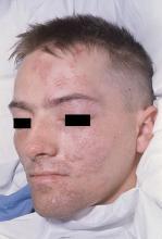 wyprysk opryszczkowy kaposiego twarz