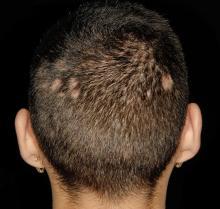 zapalenia mieszków włosowych z łysieniem