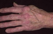 zapalenie skórno-mięśniowe dłoń
