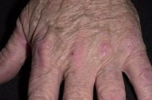 zapalenie skórno-mięśniowe na dłoniach