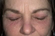 zapalenie skóry wokół oczu