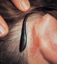 zapalenie skóry za uszami