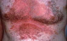 zapalenie skóry zdjęcia