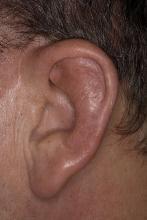 zapalenie ucha u dorosłych
