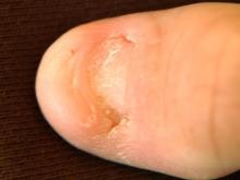 zespół paznokciowo-rzepkowy
