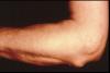 zapalenie stawu łokciowego objawy