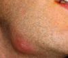 zgrubienie na brodzie