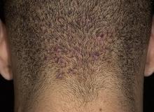 acne keloidalis
