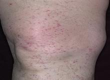 alergiczne zapalenie naczyń krwionośnych noga