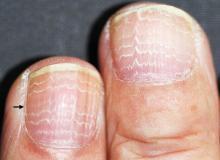 białe przebarwienia na paznokciach