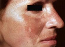 brązowe plamy na twarzy zdjęcia