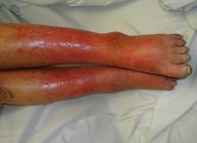 cellulitis co to jest