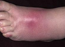 cellulitis na stopie