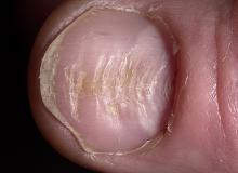 chore paznokcie u rąk