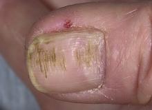 chore paznokcie u rąk zdjęcia