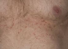 choroba grovera wysypka na ciele
