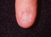 choroba paznokcia