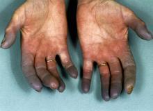 choroba raynauda skutki